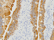 Immunohistochemical Staining microscopic image