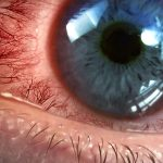 Seen here is a closeup of a wide-open blue-colored human eye that is very bloodshot red.