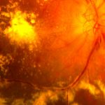Shown is a rendering of a damaged human eye retina with red blood vessels containing hemorrhages and areas of yellow hard exudates typical of an eye with diabetic retinopathy.